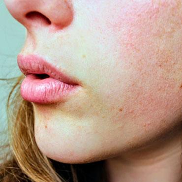 Leczenie atopowego zapalenia skóry w badaniu klinicznym